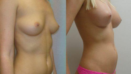 breast-augmentation-paciente-1-2-1024x741