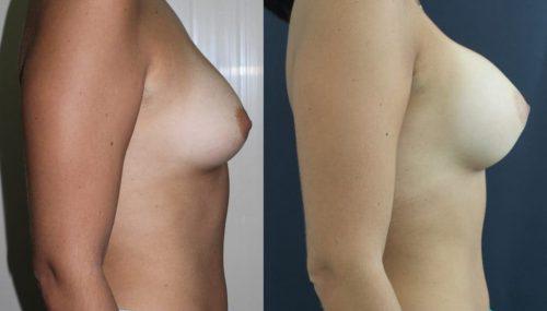 breast-augmentation-paciente-3-3-1024x741