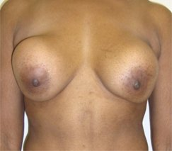 before and after breast revision in colombia