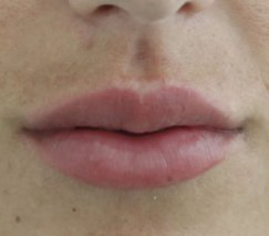 before and after lip enhancement in colombia