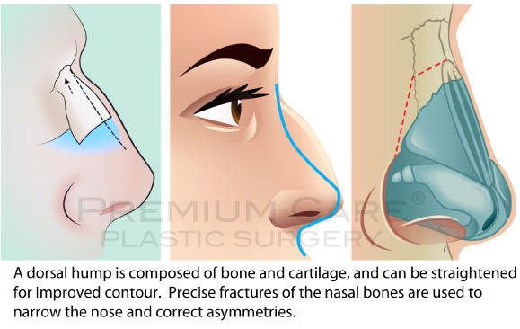 Rhinoplasty in Colombia