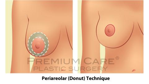 Breast Lift in Colombia - Premium Care Plastic Surgery - Periareolar Donut Technique