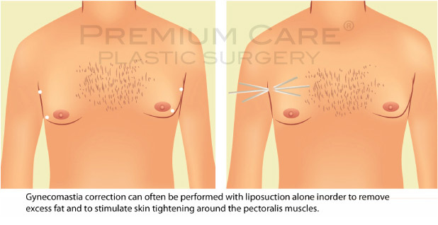 Male breast reduction Colombia - Premium Care Plastic Surgery