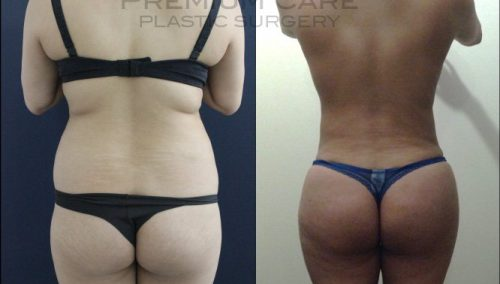 Brazilian Butt Lift gallery -Brazilian Butt Lift Colombia - Premium Care Plastic Surgery