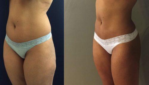 Brazilian Butt Lift gallery - Brazilian Butt Lift Cartagena Colombia - Premium Care Plastic Surgery