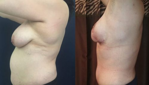 Breast Lift Colombia - Premium Care Plastic SurgeryBreast Lift Cartagena Colombia - Premium Care Plastic Surgery