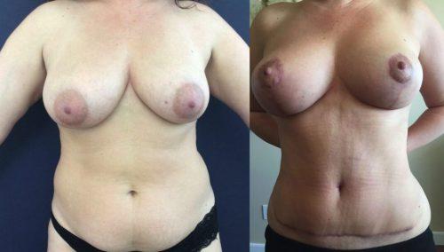 Breast Lift Colombia - Premium Care Plastic Surgery