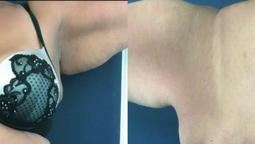 Before and After Arm Lift Colombia - Premium Care Plastic Surgery
