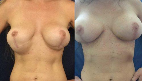 Breast Revision Cartagena Colombia - Premium Care Plastic Surgery