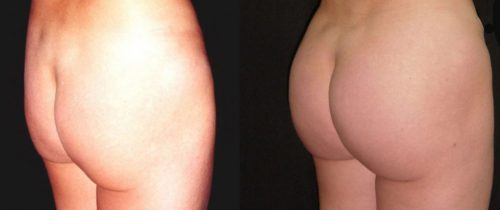 Before and After - Butt Implants Colombia - Premium Care Plastic Surgery