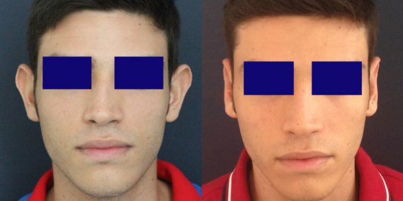 before and after Ear Surgery Colombia - Premium Care Plastic Surgery