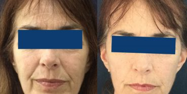 Facelift Colombia - Premium Care Plastic Surgery