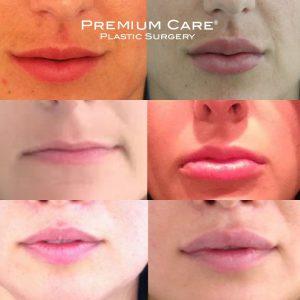 Lip Enhancement in Colombia - Premium Care Plastic Surgery