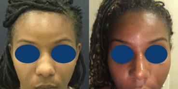 Before and After - Rhinoplasty Colombia - Premium Care Plastic Surgery