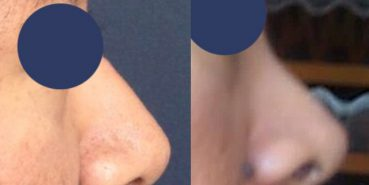 Before and After Rhinoplasty Colombia - Premium Care Plastic Surgery