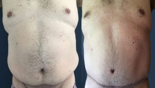 Before and After Tummy Tuck Colombia - Premium Care Plastic Surgery