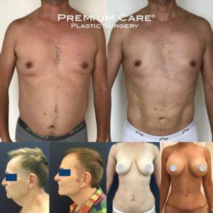 Best Plastic Surgeons Colombia - Premium Care Plastic Surgery