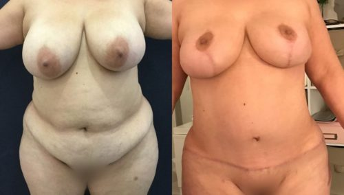 after weight loss colombia 103-1-min