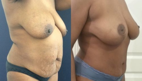 after weight loss colombia 110-2-min