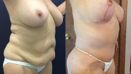 after weight loss colombia 114-3-min
