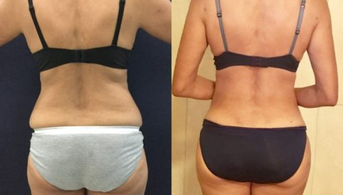 after weight loss colombia 120-4-min