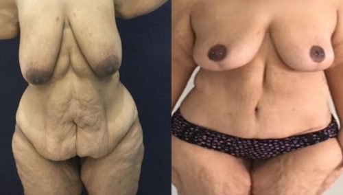 after weight loss colombia 130-1-min