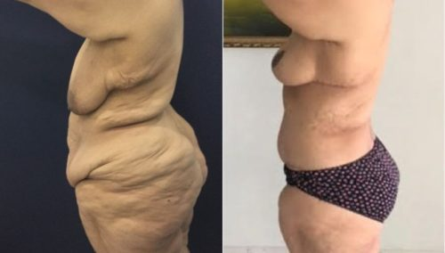 after weight loss colombia 130-3-min
