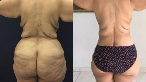 after weight loss colombia 130-4-min