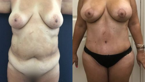 after weight loss colombia 171-1-min