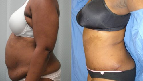 after weight loss colombia 19-3-min