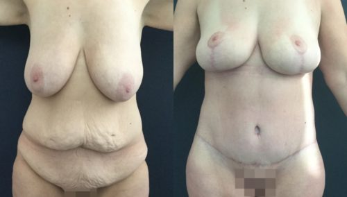 after weight loss colombia 226-1-min