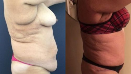 after weight loss colombia 237-4-min