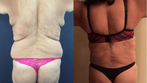 after weight loss colombia 237-5-min