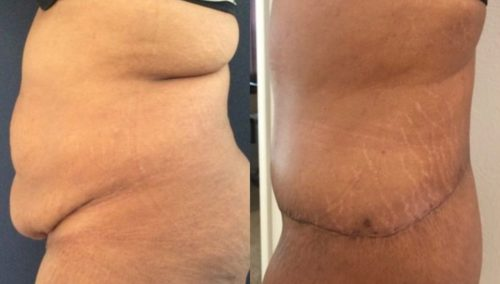 after weight loss colombia 263-2-min