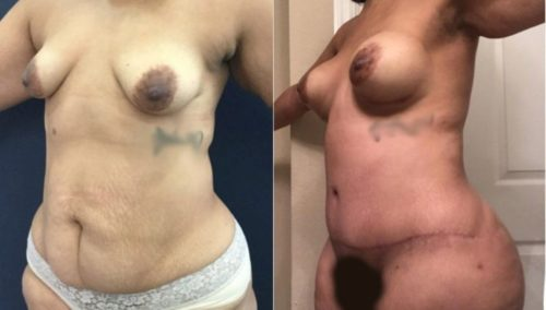 after weight loss colombia 265-2-min