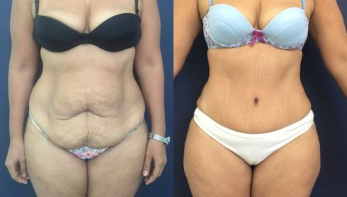 after weight loss colombia 41-1-min
