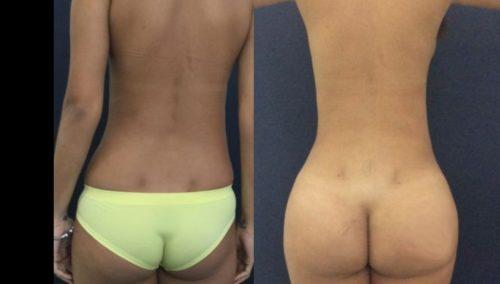 brazilian butt lift colombia 231-1-min
