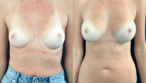 breast augmentation colombia 108-1-min