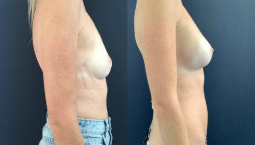 breast augmentation colombia 108-5-min
