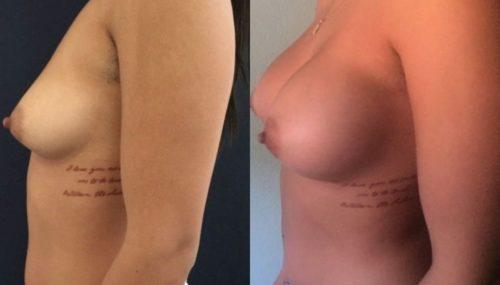 breast augmentation colombia 157-3-min