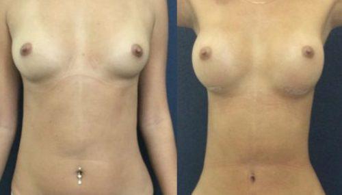 breast augmentation colombia 231-1-min