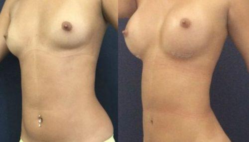 breast augmentation colombia 231-2-min