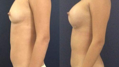 breast augmentation colombia 231-3-min