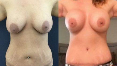 breast augmentation colombia 235-1-min
