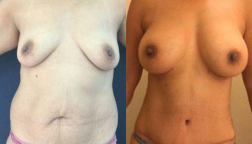 breast augmentation colombia 254-1-min
