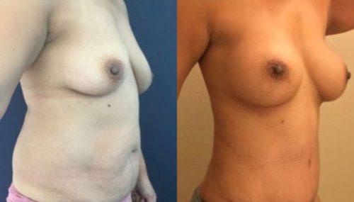 breast augmentation colombia 254-4-min
