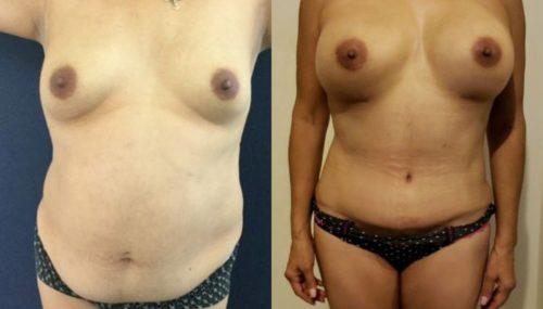 breast augmentation colombia 261-1-min