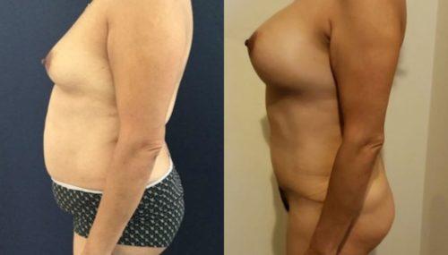 breast augmentation colombia 261-3-min