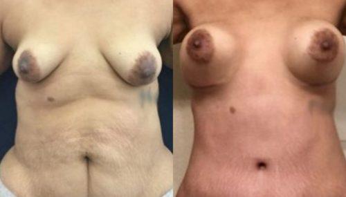 breast augmentation colombia 265-1-min