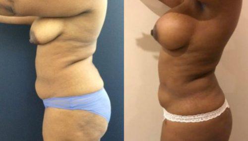 breast augmentation colombia 279-3-min
